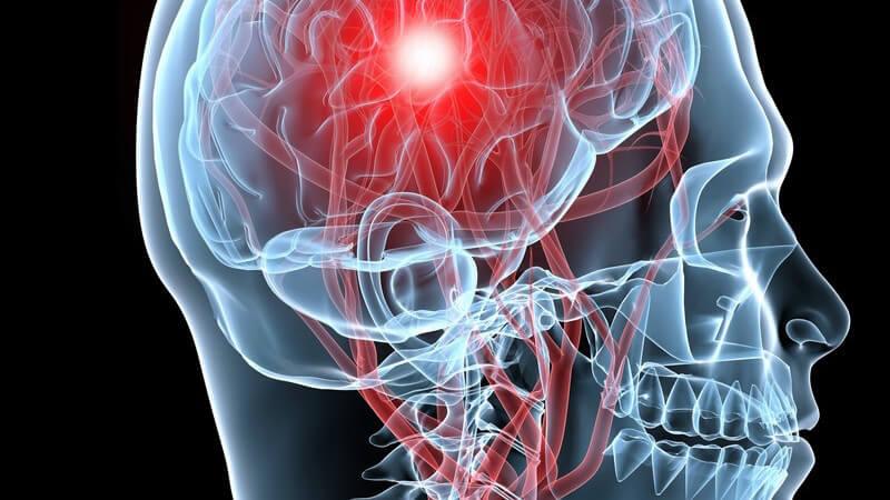 Die Entstehung eines Medulloblastoms und wie man es erkennen und behandeln kann