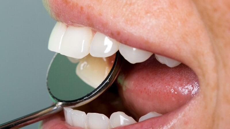 Hier erfahren Sie, wie Sie Zahnbelag erfolgreich bekämpfen und welche Hausmittel dabei zum Einsatz kommen können