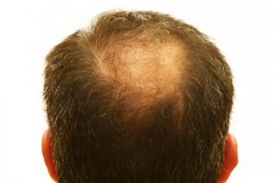 Eine richtige glatze für kopfform Glatze?! ja