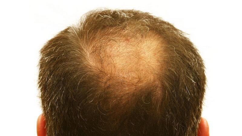 Geheimratsecken leichte Haarpigmentierung in