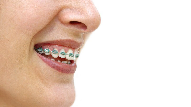 Wissenswertes zur festen Zahnspange