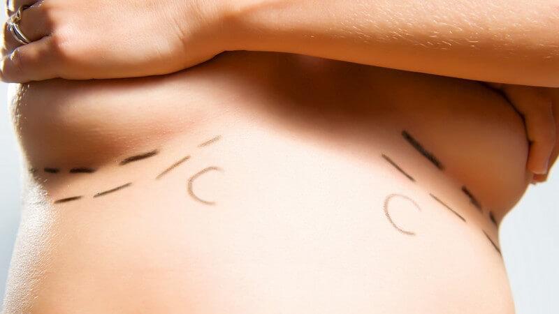 Was Sie über eine Brustverkleinerung wissen müssen, und wann die Krankenkasse eine Brustverkleinerung unterstützt
