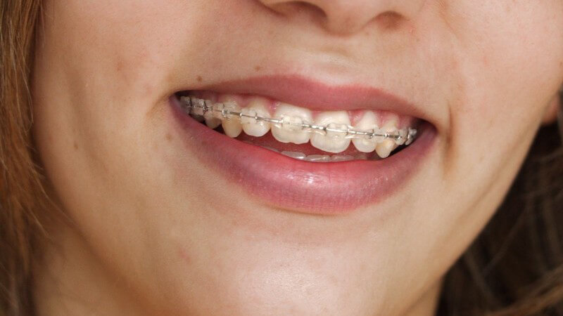 Wissenswertes über Zahnspangen
