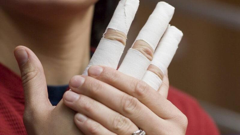 Zu den Fehlstellungen der Hand zählen z.B. fehlende oder mehr Finger oder auch Formveränderungen