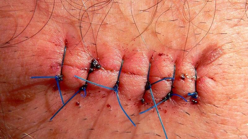 Eine bestehende Entzündung ist ein möglicher Grund dafür, eine Wunde offen zu lassen