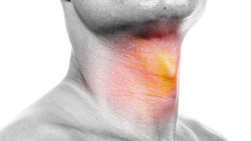 Durch die Aussackung des Schlunds kann es mitunter zu Schluckbeschwerden kommen - im fortgeschrittenen Stadium erfolgt eine Operation
