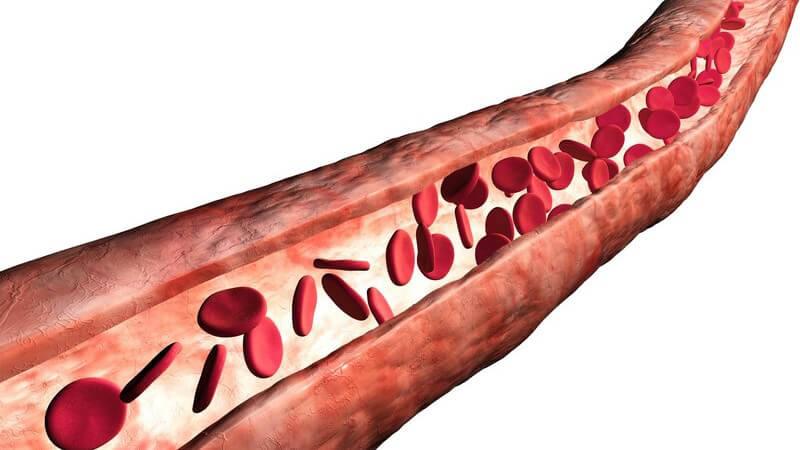Eine Verletzung der Blutgefäße kann eine Minderversorgung der geschädigten Körperstelle sowie eine Thrombose zur Folge haben