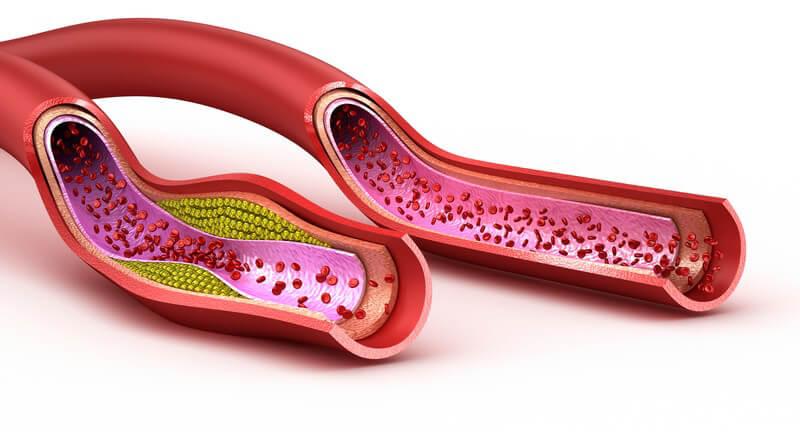 Als Ursache des Winiwarter-Buerger-Syndroms gilt eine Blutgerinnungsreaktion