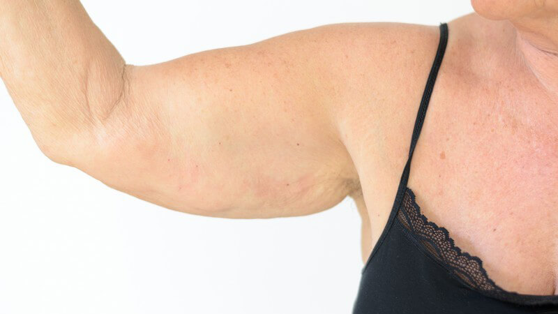 Unter einer Brachioplastik versteht man die chirurgische Entfernung von überschüssiger Haut und Fettpolstern