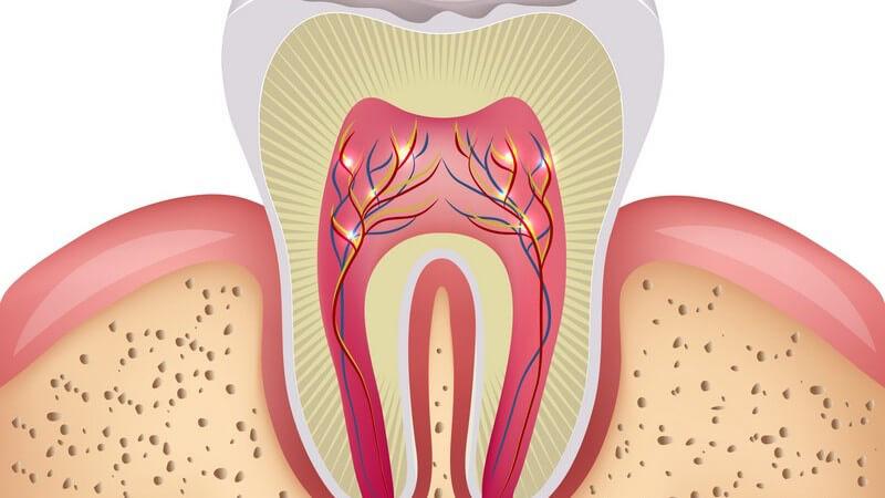 Die Entstehung von Karies und wie man auch Zahnahlskaries erkennen und behandeln kann