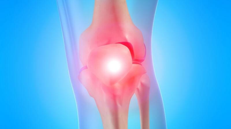 Knochenfrakturen mit Beteiligung des Gelenks gelten als häufigste Ursache für eine posttraumatische Arthrose