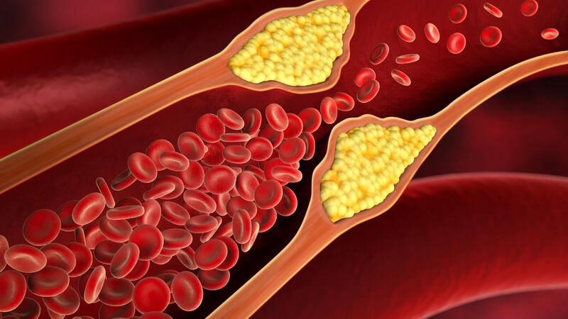 Wissenswertes zum Nierenarterienaneurysma
