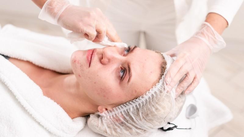 Eine mittelschwere Verlaufsvorm der Acne vulgaris