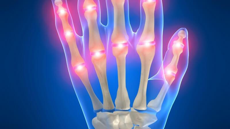 In den meisten Fällen sind mehrere Finger von der Bouchard-Arthrose betroffen