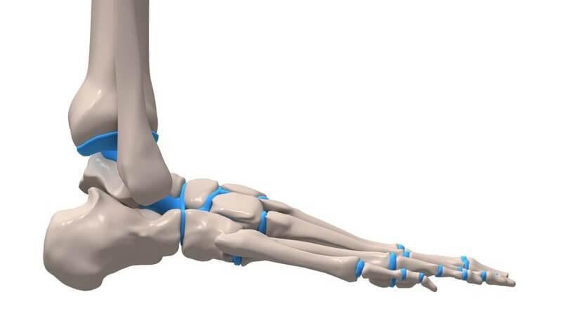 Umknicken, Knochenbrüche oder Schäden der Bänder können eine Sprunggelenksarthrose auslösen