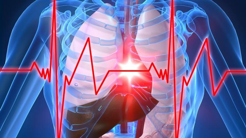 Schmerzen hinter dem Brustbein sowie Engegefühle in der Brust sind Anzeichen einer stabilen Angina pectoris