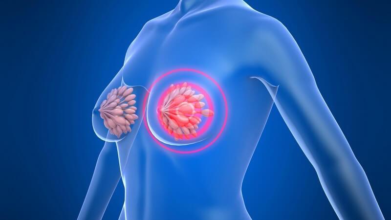 Es handelt sich um eine chronische Brustdrüsenentzündung mit Erweiterung der Milchgänge
