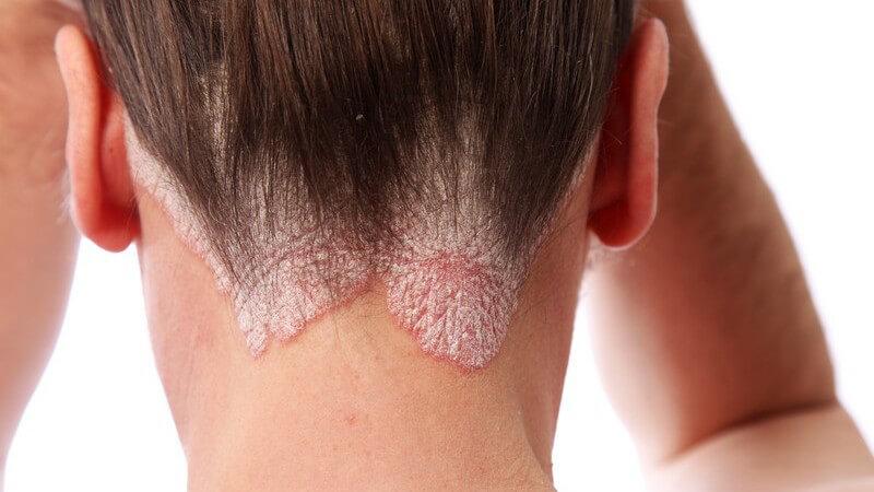 Rötungen, Bläschen und Ödeme sind mögliche Anzeichen eines allergischen Kontaktekzems
