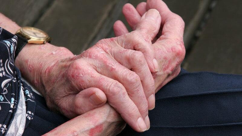 Andere Hauterkrankungen, aber auch äußere Faktoren, können das Hand- und Fußekzem auslösen