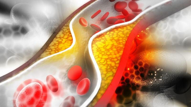 Traumata des Weichteilgewebes gelten als Ursache einer Fettembolie