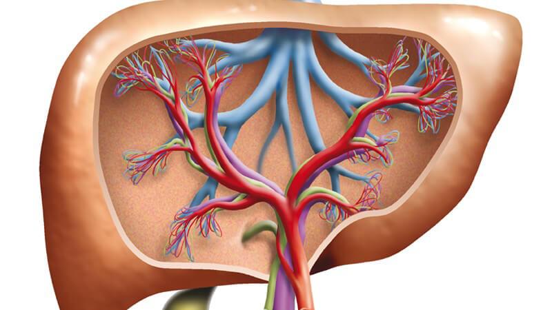Gallengries kann sich im Unterschied zum Gallenstein von selbst wieder zurückbilden