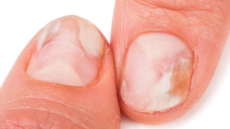 Die Onychomykose tritt vor allem an den Nägeln der Füße auf