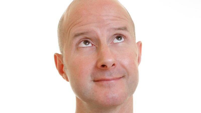 Geheimratsecken sind meist das erste Anzeichen dieser erblich bedingten Erkrankung, von der fast ausschließlich Männer betroffen sind
