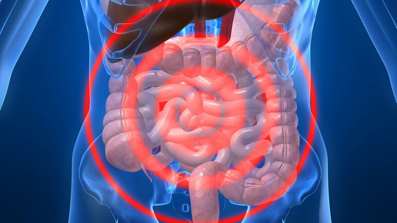 Die Entstehung eines Darmverschlusses und wie man ihn erkennen und behandeln kann