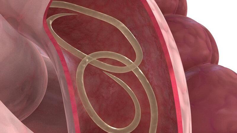 Schlechte hygienische Verhältnisse gelten als Risiko für die Verbreitung des Spulwurms
