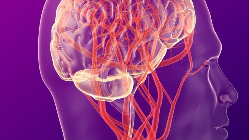Beim hämorrhagischen Infarkt kommt es zur Bildung eines Hämatoms im Gehirngewebe