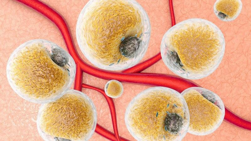 Es liegt ein Defekt des lysosomalen Enzyms Glukozerebrosidase vor