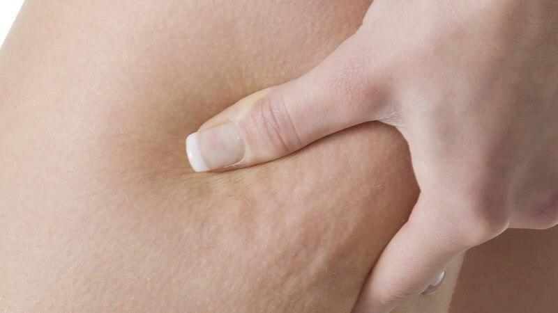 Typische Körperstellen an denen eine Bindegewebsschwäche auftreten kann und wie man sie in den Griff bekommt