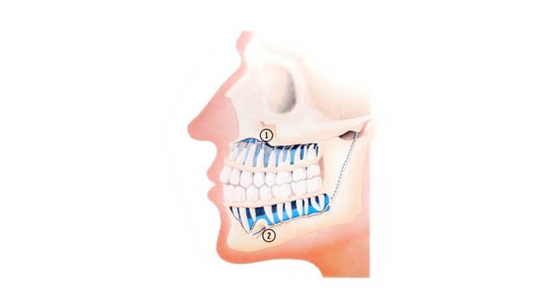 Bei einem Überhang der oberen Schneidezähne von mehr als drei Millimetern, ist von einer Fehlstellung die Rede