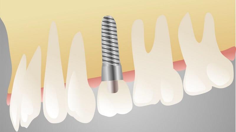 In den meisten Fällen sind Zahnerkrankungen für eine Zahnlücke verantwortlich
