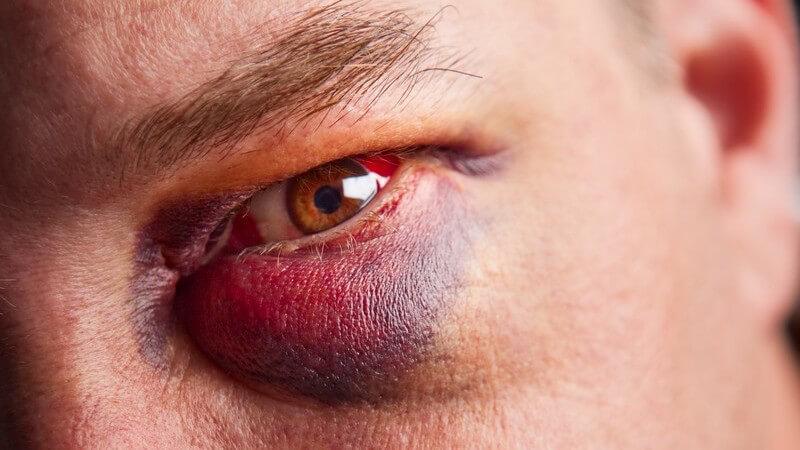 Zu einem Veilchen kommt es aufgrund von äußerer Gewalteinwirkung