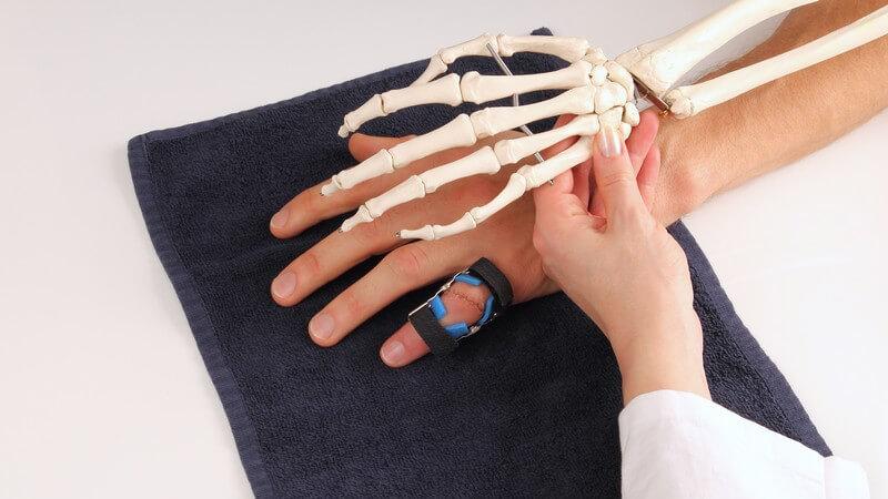 Zu einer Bänderzerrung am Fingergelenk kommt es besonders bei der Ausübung von Ballsportarten