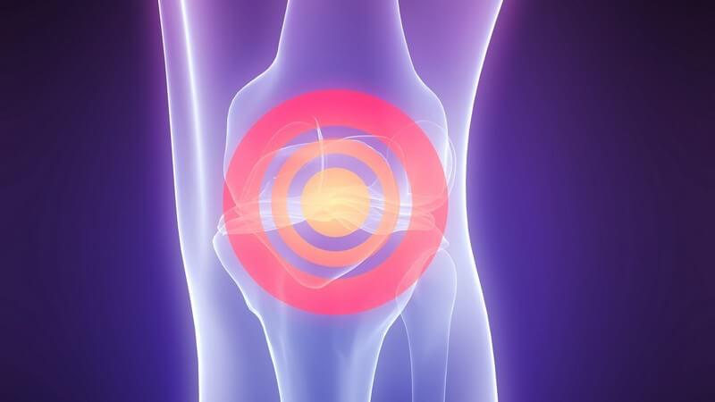 Die Ruptur erfolgt durch unnatürliche Bewegungen des Kniegelenks, zum Beispiel ein Verdrehen