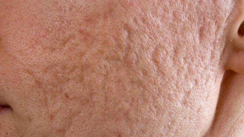 Es werden mehrere Formen der Aknenarben unterschieden, die einer ärztlichen Behandlung bedürfen