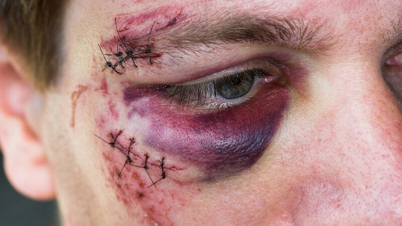 Kommt es zu einem Cut, sollte dieser bei einer tiefen Wunde und starken Blutung ärztlich behandelt werden