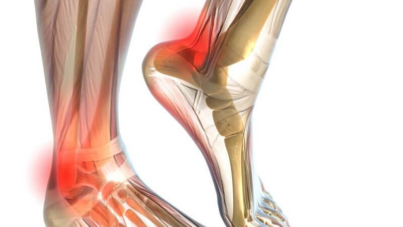 Besonders Sportler, die die Belastung(sdauer) schnell steigern, sind davon betroffen