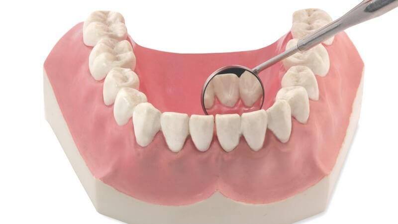 Was ist eigentlich Zahnstein, warum kommt er immer wieder und was kann man dagegen unternehmen?