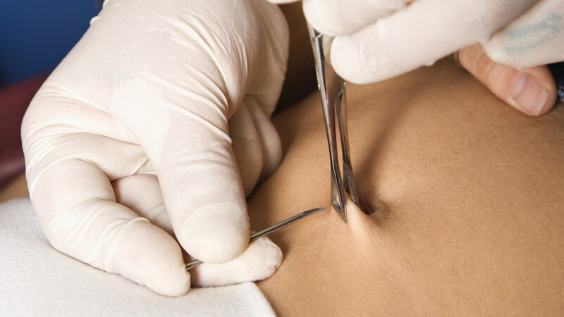 Stechen intim piercings ohne Piercing Stechen