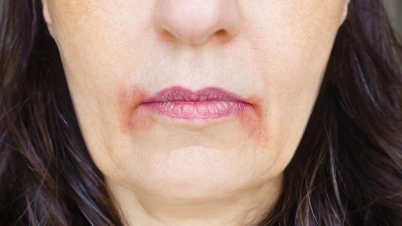 Mundrose oder Dermatitis perioralis entsteht meist durch eine Überpflegung der Haut und sollte schonend behandelt werden