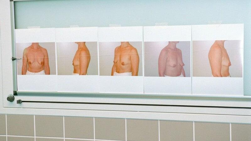 Behandlungsmöglichkeiten bei einer asymmetrischen Brust