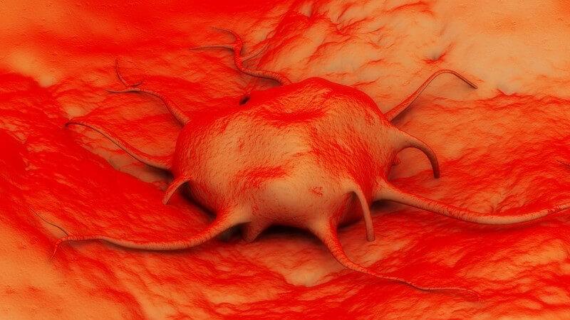 Bauchspeicheldrüse und Magen-Darmtrakt sind besonders von diesem Tumor betroffen