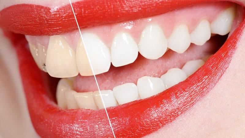 Über die Ursachen für Zahnverfärbungen und Wirkungsweise und Methoden des Bleachings zur Aufhellung der Zähne