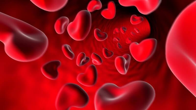 Die Entstehung einer Arteriosklerose und wie man sie erkennen und behandeln kann