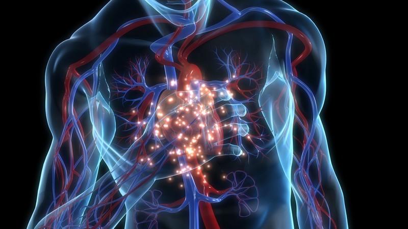Zu den häufigsten Auslösern zählt eine fortschreitende Verkalkung der Aortenklappe