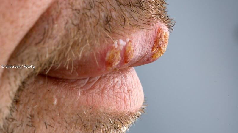Herpes genitalis anzeichen