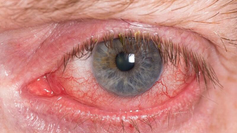 Die Entstehung einer Bindehautentzündung und wie man sie erkennen und behandeln kann